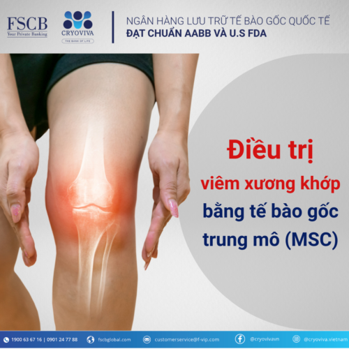 Điều trị viêm xương khớp bằng tế bào gốc trung mô (MSC)